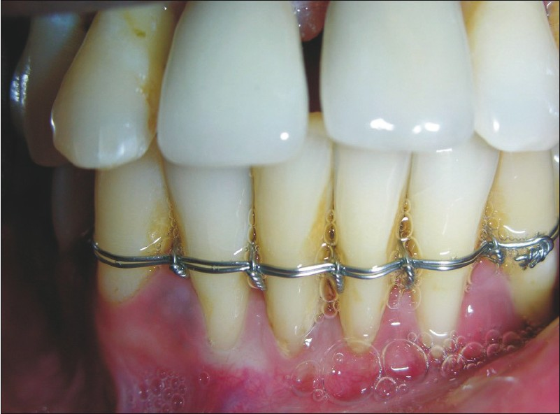 Figure 14: Implant with prosthesis