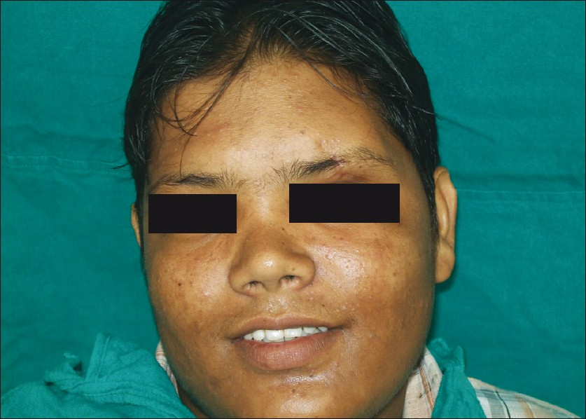 Figure 6: Three-months post operative photograph