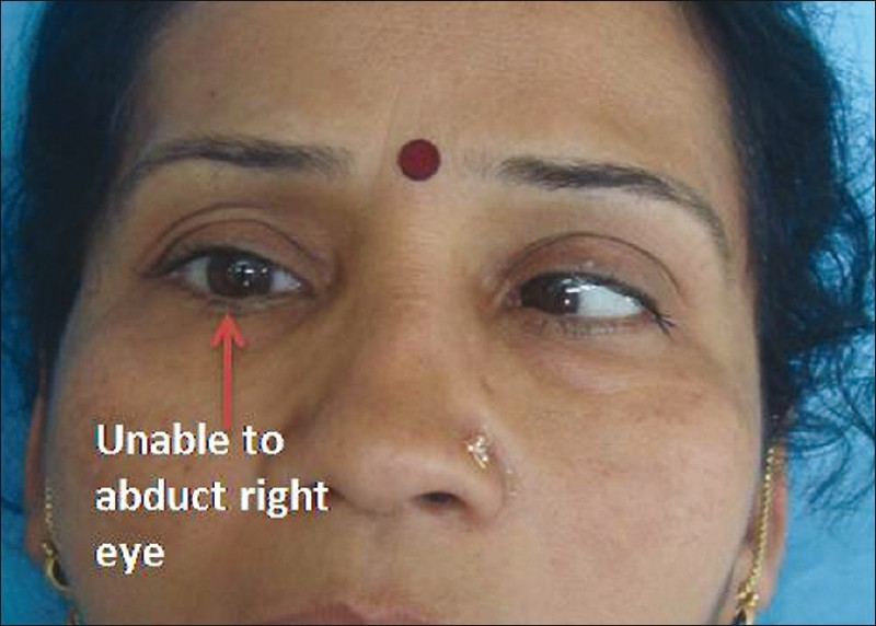 Figure 1: Immediate postoperative image. Patient attempts to gaze to her right. Note the inability of the right eye to abduct past the midline