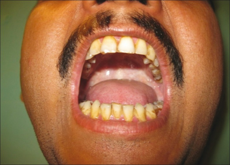 Figure 1: Adequate mouth opening post treatment