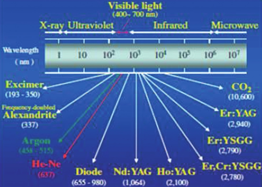 Figure 1: Various types of lasers and their corresponding wavelengths