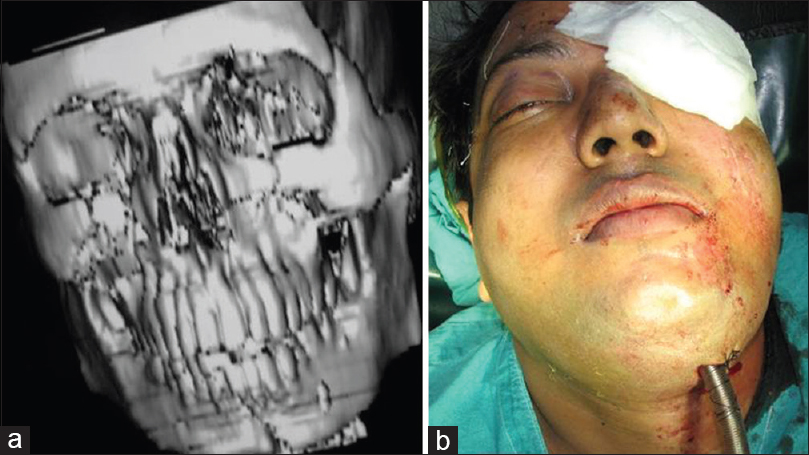 Figure 3: (a) 3 D Recon image of Patient with bilateral leforte II, NOE complex and mandibular fracture; (b) Transmylohyoid Oroendotracheal intubation depicted clinically