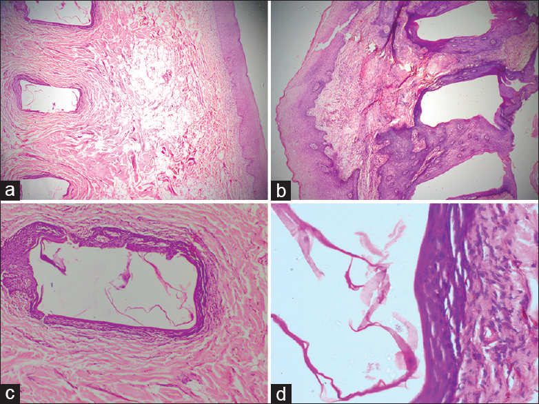 An unusual occurrence of multiple epidermoid cysts in both
