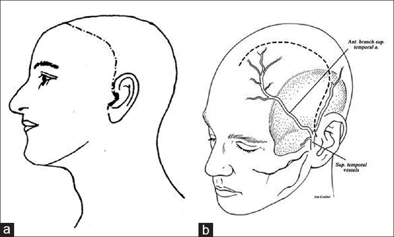 Minimizing complications associated with coronal approach by