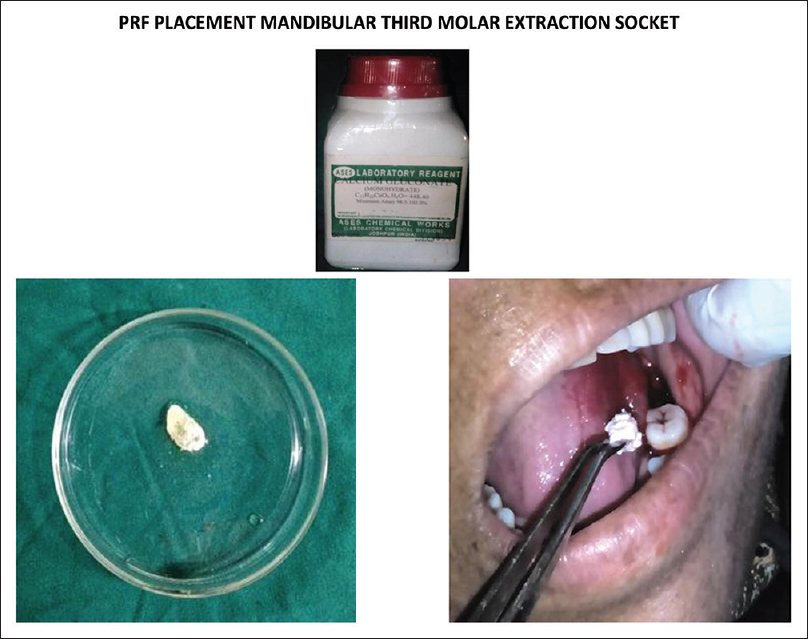 Figure 5: Representative pictures showing pre-, post- and intra-operative periods of surgical extraction of mandibular third molar in protein-rich fibrin-treated patients