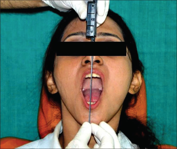 Figure 3: Examination of mouth opening