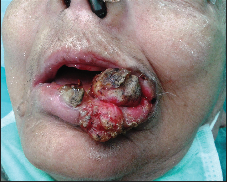 Figure 1: Preoperative view of verrucous carcinoma of the left oral commissure with extension to the upper lip, lower lip, left buccal mucosa, and mental region