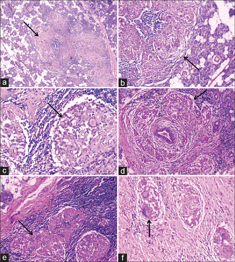 Figure 5: Histopathology: Multiple epithelioid granuloma in parotid gland parenchyma (H and E, ×40) (a). (H and E, ×100) (b). (H and E, ×400) (c). Periductal granuloma (H and E, ×200) (d). Periglandular lymphoid tissue involvement by granuloma (H and E, ×200) (e). Periglandular fibrous tissue showing granuloma with Langhans giant cell (H and E, ×400) (f). (granuloma shown by arrow)