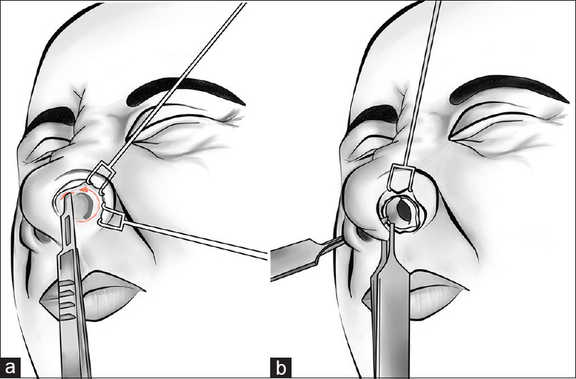 Figure 2: (a) An intercartilaginous incision is initiated at the inferior border of the upper lateral cartilage, beginning at the lateral end and extending medially curved into the membranous septum anteriorly to meet the transfixion incision. (b) Complete transfixion incision is used to separate the membranous septum/columella from the cartilaginous septum and converges with the intercartilaginous incision