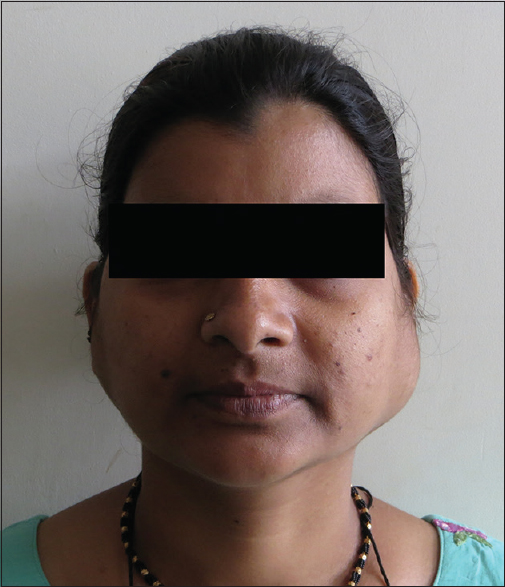 Figure 1: Preoperative frontal view of the patient showing the bilateral enlargement of the parotid region