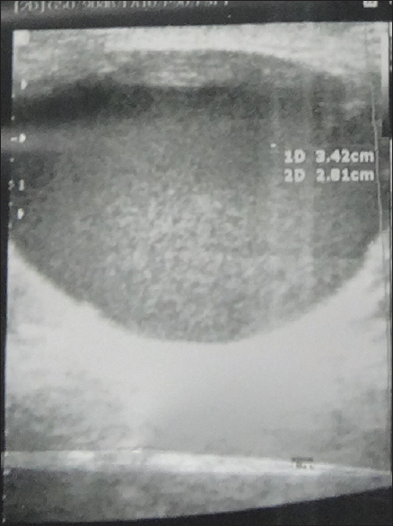 Figure 6: Ultrasound of the lesion of the breast