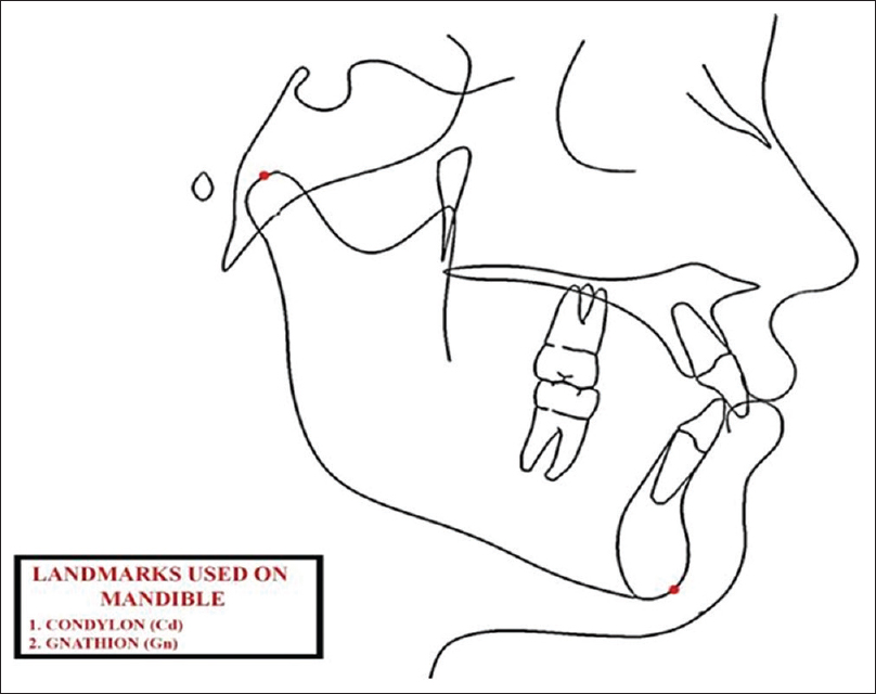 Figure 1: Landmarks used in the study on the mandible