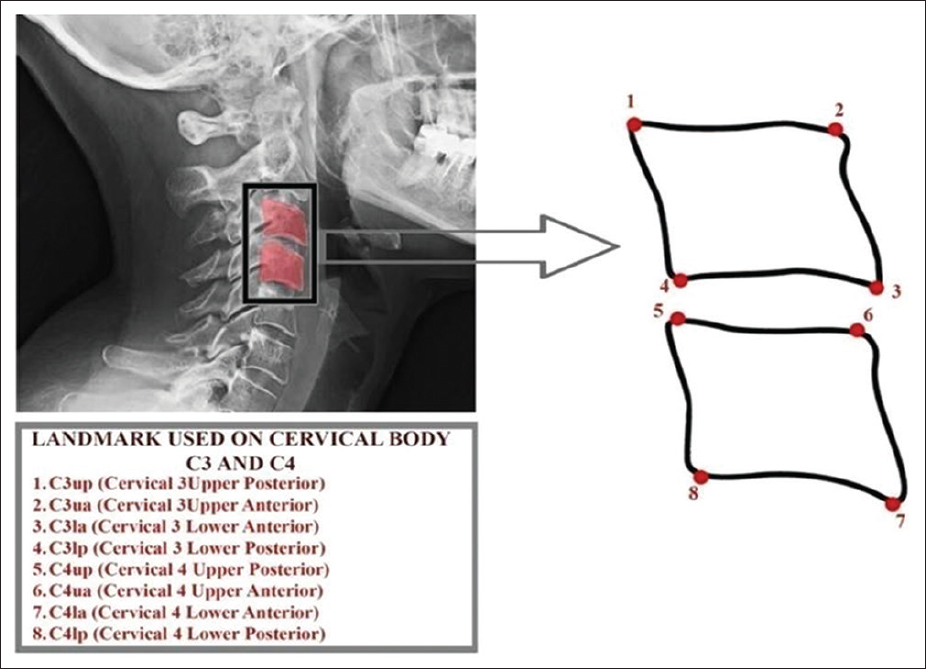 Figure 3: Reference lines used and parameters of cervical vertebral bodies measured on cephalometric radiographs